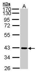 NBP1-32655 - CD322 / JAM2