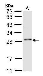 NBP1-32661 - RNF114