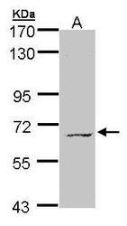 NBP1-32669 - MPP3