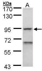 NBP1-32673 - EEF-2 kinase