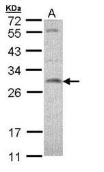 NBP1-32694 - SNAP23