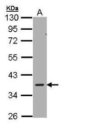 NBP1-32697 - AMPK gamma-2 chain / PRKAG2