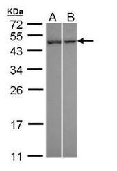 NBP1-32698 - CLCF1