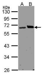 NBP1-32704 - Ribophorin-1 / RPN1
