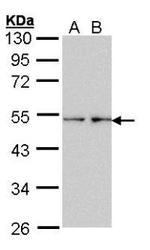 NBP1-32708 - Fascin