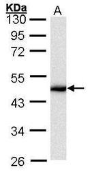 NBP1-32709 - Cytokeratin 16