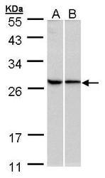 NBP1-32710 - RPL13A