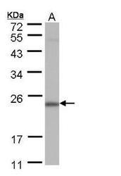 NBP1-32716 - POLR2G