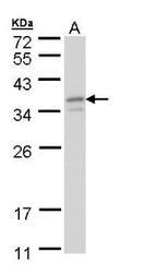 NBP1-32717 - GTF2E2 / TF2E2