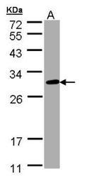 NBP1-32719 - CHIC2