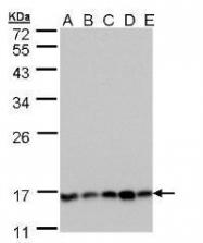NBP1-32720 - PPP3R1 / Calcineurin B