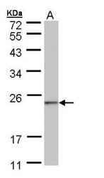 NBP1-32722 - NDUFAF4