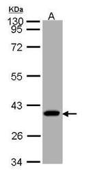 NBP1-32728 - SUCLG1