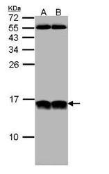 NBP1-32732 - NHP2L1