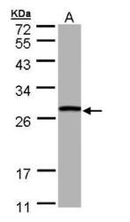 NBP1-32733 - GSTT1