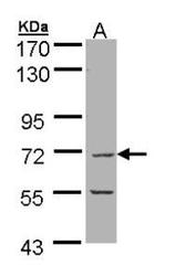 NBP1-32736 - EIF2B4 / EIF2BD