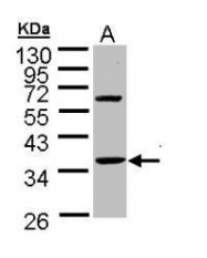 NBP1-32748 - Skeletal muscle Troponin T