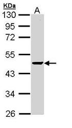 NBP1-32751 - Protein phosphatase 1A / PPM1A