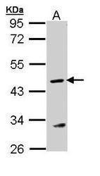 NBP1-32752 - Arginosuccinase