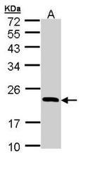 NBP1-32755 - RBP4