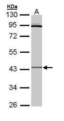 NBP1-32792 - CRLF1