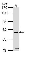 NBP1-32796 - CDKAL1