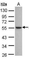 NBP1-32809 - Alcohol dehydrogenase 1C (ADH3)