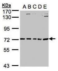 NBP1-32826 - ALAS2