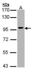 NBP1-32841 - Villin-1