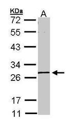NBP1-32863 - MGC40579