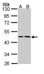 NBP1-32882 - Epoxide hydrolase 1 / EPHX1