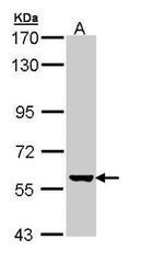 NBP1-32883 - CYP2R1