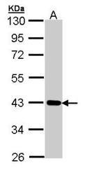 NBP1-32884 - CRTAP
