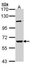 NBP1-32887 - RBMY1A1 / RBMY1C