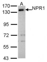 NBP1-32889 - NPR1 / ANPRA