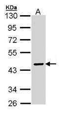 NBP1-32903 - SERPINA10 / ZPI