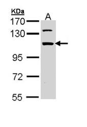 NBP1-32908 - RBM28