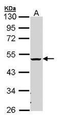 NBP1-32912 - CHST6