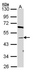 NBP1-32913 - BAAT