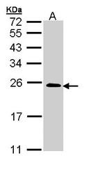 NBP1-32919 - RRAS2 / TC21