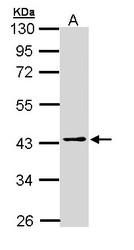 NBP1-32920 - PSAT1