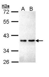 NBP1-32927 - ZNF346