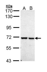 NBP1-32933 - PPIL2