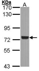 NBP1-32945 - SYK