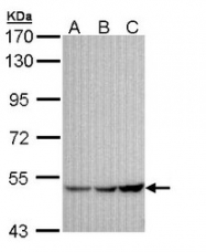 NBP1-32958 - KCNJ3