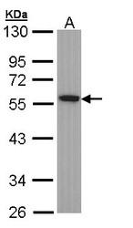 NBP1-32959 - alpha Tubulin / TUBA1B