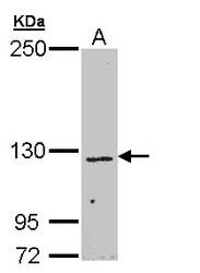 NBP1-32960 - CHL1