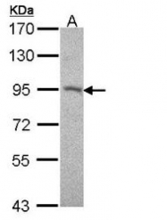 NBP1-32961 - Desmocollin-2