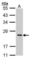 NBP1-32974 - CSRP3