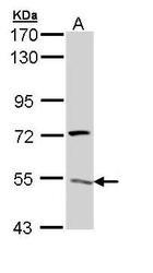 NBP1-32980 - ATP6V1H
